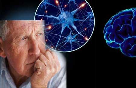 Parkinsonin Taudin Oireet